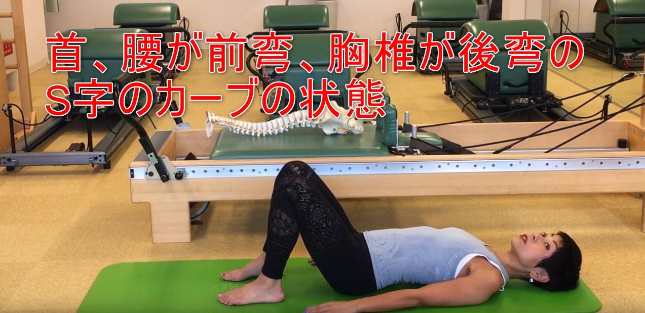 63-03_首、腰が前弯、胸椎が後弯のS字のカーブの状態